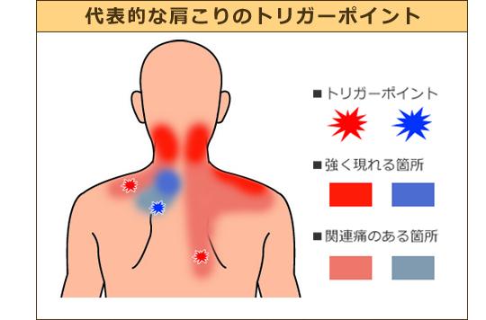 肩こりを改善するトリガーポイント